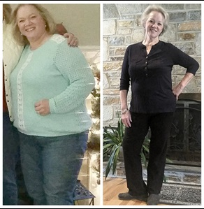 Barbara's greatest success from bariatric surgery? Getting rid of insulin injections and diabetes.
