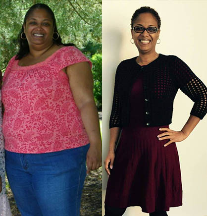 Two years after bariatric surgery and 130 pounds lighter, Lisa Farmer's health and life have changed dramatically.