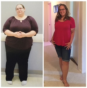 After Bariatric Surgery Jennifer Doesnt Diet She Lives Virtua
