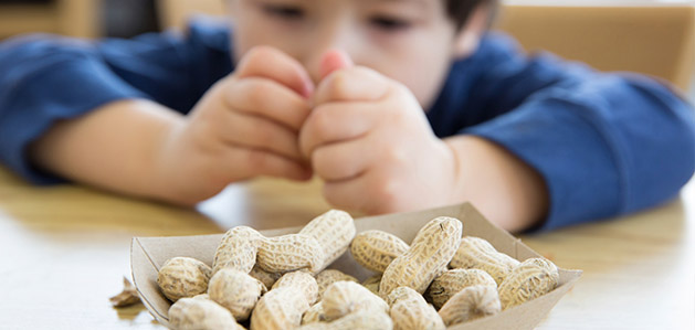 The 8 High-Risk Foods That Trigger Allergic Reactions - Virtua Articles