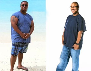Weight Loss Surgery South Jersey - Virtua