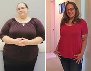 Weight-loss surgery opened the door to a healthier life for Jennifer.