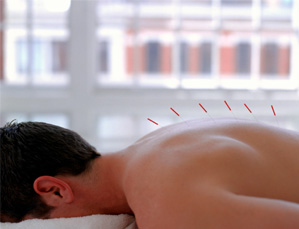 acupuncture small