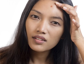 5-ways-to-prevent-breakouts