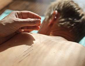 How to find the acupuncturist that's right for you