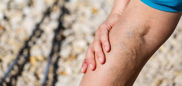 Can Varicose Veins Cause Leg Pain? - Virtua Article